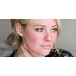 Face Wash for people prone to Rosacea & Acne Rosacea